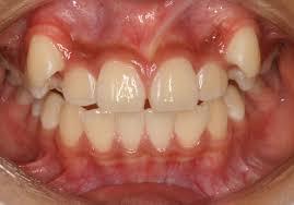 「八重歯」の画像検索結果