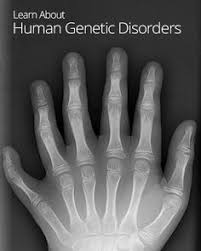 Image result for human genetic disorders