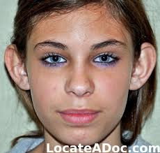 ear surgery otoplasty pictures of a 11 year old female 84 lb beforeafter