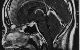 「頭蓋内圧亢進」の画像検索結果