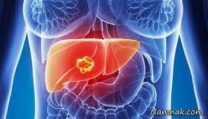 Image result for بیماری سرطان