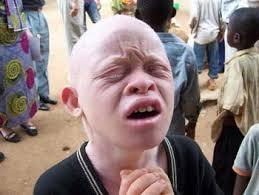 Resultado de imagem para albinismo em mocambique