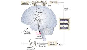a wireless brain machine interface for real time speech synthesis