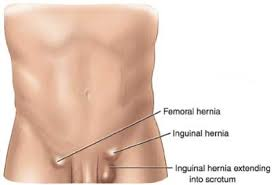 Image result for inguinal hernia africa