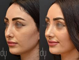 beverly hills rhinoplasty specialist dr donald yoo performed a beverly hills rhinoplasty specialist dr donald yoo performed a revision rhinoplasty ear cartilage on