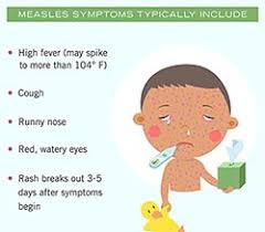 Image result for measles