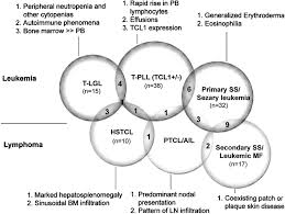 a systematic approach to diagnosis of mature t cell leukemias figure