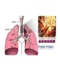 Cara Mengobati Penyakit Kanker Paru-Paru Secara Alami