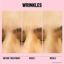 Microneedling Anti-Wrinkle Retinol Patches - <b>Peace Out</b> | Sephora