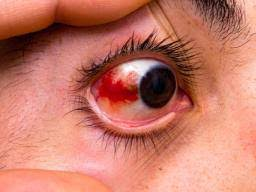 <b>Red eyes</b>: List of common causes