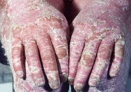 Resultado de imagen para psoriasis