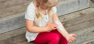 <b>Eczema</b> in <b>Babies</b> and Children - HealthyChildren.org