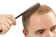 <b>Средства от выпадения волос</b>: лучшие средства против ...