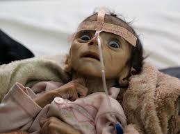 Resultado de imagem para children of Yemen