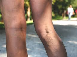 <b>Varicose Vein</b> Pain: What It Feels Like and <b>Relief</b>