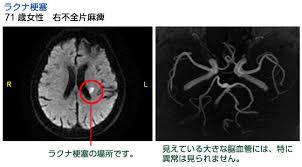「脳梗塞画像」の画像検索結果
