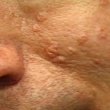 Bildergebnis für sebaceous hyperplasia