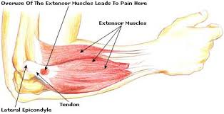 Image result for trigger point chart tennis elbow
