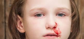 Image result for ضرب... الطفل على الوجه وما ينتج عنه