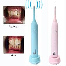 Inalfonso <b>Ultrasonic</b> Dental Calculus and Plaque Remover, Portable ...