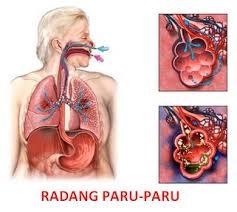 cara mengobati paru-paru basah