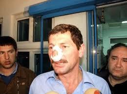 Olayla ilgili 4 kişi gözaltına alınırken, burnu kırılan Ali Eraslan, saldırıyı AKP'li bir grubun gerçekleştirdiğini ileri sürdü - fft5_mf136982