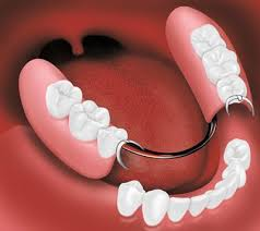 Картинки по запросу acrylic partial dentures