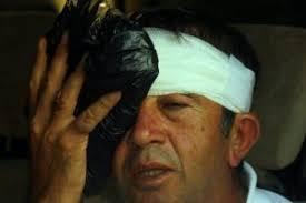 Maç sırasında TGF Başkanı Ahmet Ağaoğlu'nun vurduğu top, izleyicilerden birisinin kafasına geldi. Eski devlet bakanı Fikret Ünlü, iş adamları Mustafa Koç ve ... - 120392-ahmet-agaoglu-hedefi-sasirdi-5078322e586ef