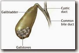 Image result for homeopathy images gallstones