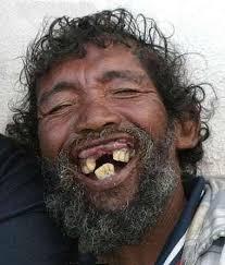 Risultati immagini per denti