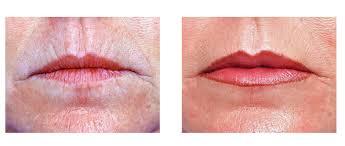 laser resurfacing for lip wrinkles napolis dr barry eppley laser resurfacing for lip wrinkles napolis dr barry eppley