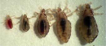 Image result for head lice