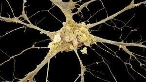 Image result for axon neuron electron          microscopy