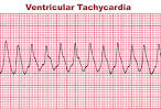 tachycardia, ventricular