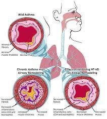 Khí nitric ôxít giúp giảm suy hô hấp ở trẻ sinh non