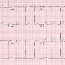<b>Don't Worry</b>, <b>It's</b> Just a Valve Problem | Clinician Reviews