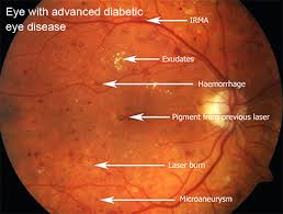Image result for fundus photography