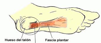 fascia, fascitis plantar, lesiones, futbol, tratamiento, sintomas, causas, prevencion