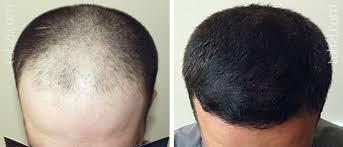 Выпадение волос у мужчин витамины