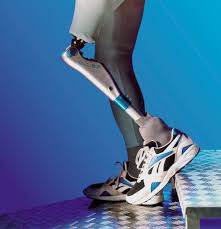 Image result for prosthetic
