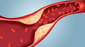 Imagini pentru remediu natural colesterol