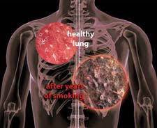 Image result for lung cancer africa
