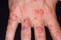 Dermatis