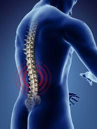 lumbar spondylosis