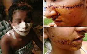Teenage Girl Left Disfigured After 'Jealous Rivals Mutilate Her ... via Relatably.com