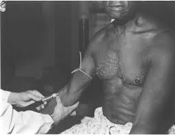 us slave the tuskegee syphilis experiment a tragedy of race and us slave the tuskegee syphilis experiment a tragedy of race and medicine