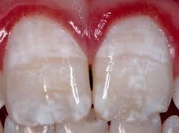 Fluoride Damage on Teeth Vital Force Clinic St Loui