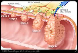 Resultado de imagem para Bowel cancer