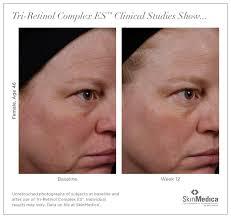 makeup artist portfolio sle resumes 2 muac retinol before and after 46 year old woman 3 months of using retinol cream