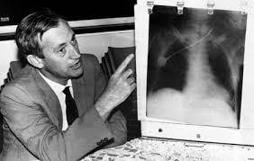 「1987,first heart transplantation made by Christiaan Neethling Barnard」の画像検索結果